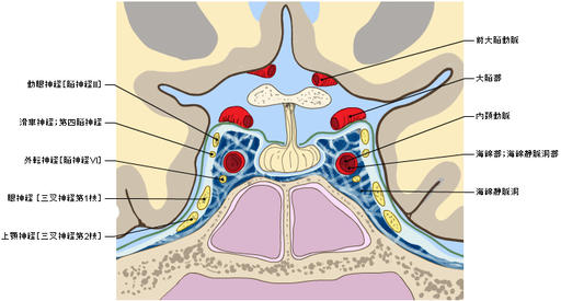 Cavernous sinus - Coronal section : Chiasmatic cistern, Pituitary gland, Optic chiasma, Internal carotid artery, Cavernous part, Oculomotor nerve [III], Trochlear nerve [IV], Ophthalmic nerve; Ophthalmic division [Va; V1], Maxillary nerve; Maxillary division [Vb; V2], Abducent nerve; Abducens nerve [VI]