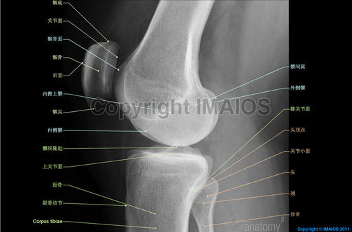 Knee joint - Radiography (Lateral view) :Patella, Medial condyle, Lateral condyle
