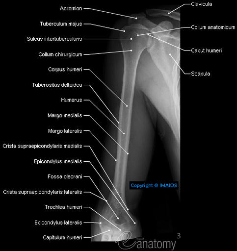 Radiography - Arm - Humerus : Shaft of humerus; Body of humerus, Surgical neck, Medial supraepicondylar ridge, Medial epicondyle, Greater tubercle, Anatomical neck