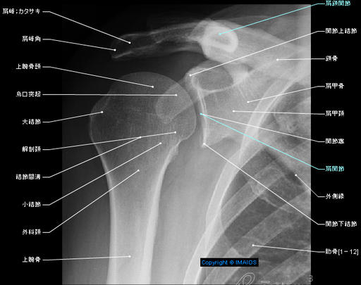 Shoulder - Pectoral girdle; Shoulder girdle - Radiography - Human anatomy : Glenohumeral joint; Shoulder joint, Acromion, Clavicle, Scapula, Glenoid cavity, Lesser tubercle, Coracoid process