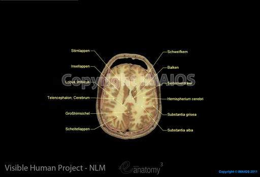Anatomy of the whole human body (male cadaver) : Brain